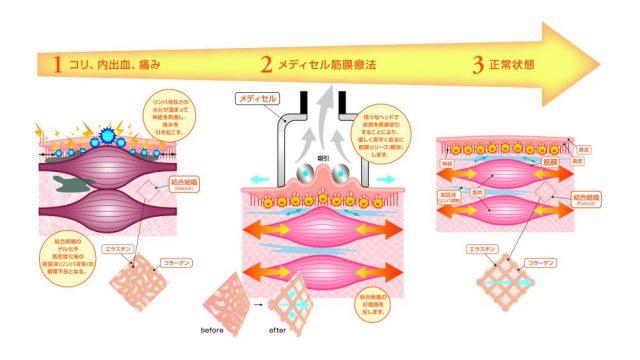 皮膚を吸引して結合組織の循環を促す、メディセル筋膜療法