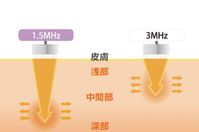 深部から浅部まで適切に対応する1.5MHz・3MHzプローブ / LIPUS